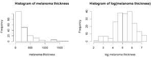 Survival analysis - Histograms of melanoma tumor thickness