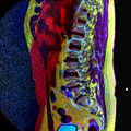LSV MRI spondylolisthesis T1W T2W STIR 04.jpg