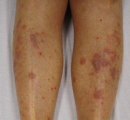 psoriasis inflammatoire pubis