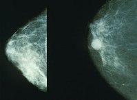 Mamografía de un seno normal (izq) y de cáncer de seno (der)