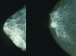 definition of mammography