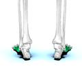 Metatarsal bones06.png