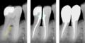 Molar Praemolarisierung.png