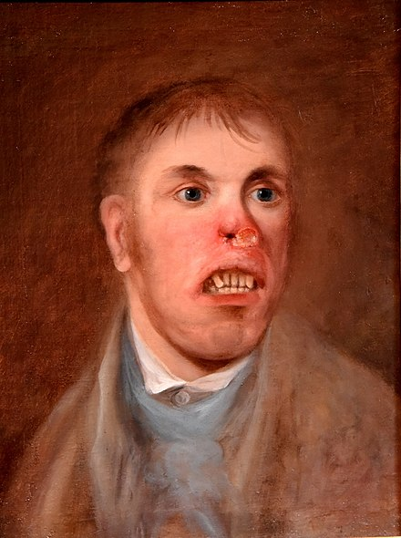 Portrait of Mr. J. Kay, affected with what is now believed to have been congenital syphilis c. 1820 Portrait of Mr. J. Kay, afflicted with a rodent disease. Unknown artist, c. 1820 CE. The Wellcome Collection, London.jpg