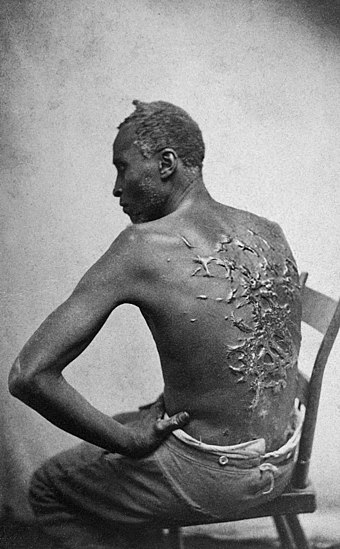 Whipping keloid scars of escaped slave, Gordon, in 1863. Louisiana. This famous photo was distributed by abolitionists. Scourged back by McPherson & Oliver, 1863, retouched.jpg