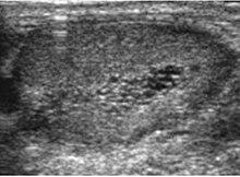Scrotal ultrasound - W...