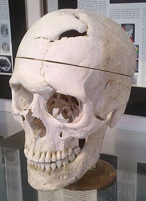 Warren Anatomical Museum - Skull of Phineas Gage