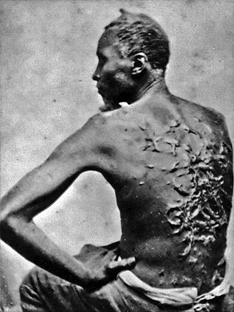 Racism in the United States - Scars of a whipped slave, April 2, 1863, Baton Rouge, Louisiana