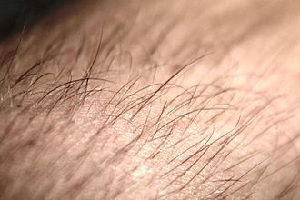 Hair follicle - A photograph of hair on a human arm emerging from follicles
