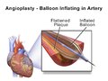 Blausen 0028 Angioplasty BalloonInflated 01.png