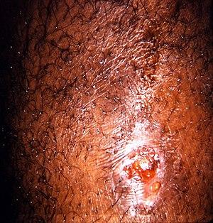 Coccidioidomycosis involving skin