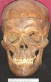 Cráneo Semmelweis.tif