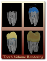 Drishti-tooth.png