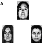 Emotion-matching taskThis task involves picking one of the images at the bottom that expresses the same emotion as the one at top. People with schizophrenia often have difficulty recognizing facial emotions.[11]