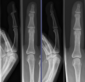 Reduction (orthopedic surgery) - Image: Finger luxation pre and post