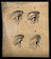 Four eyes. Drawing, c. 1794. Wellcome V0009239EL.jpg