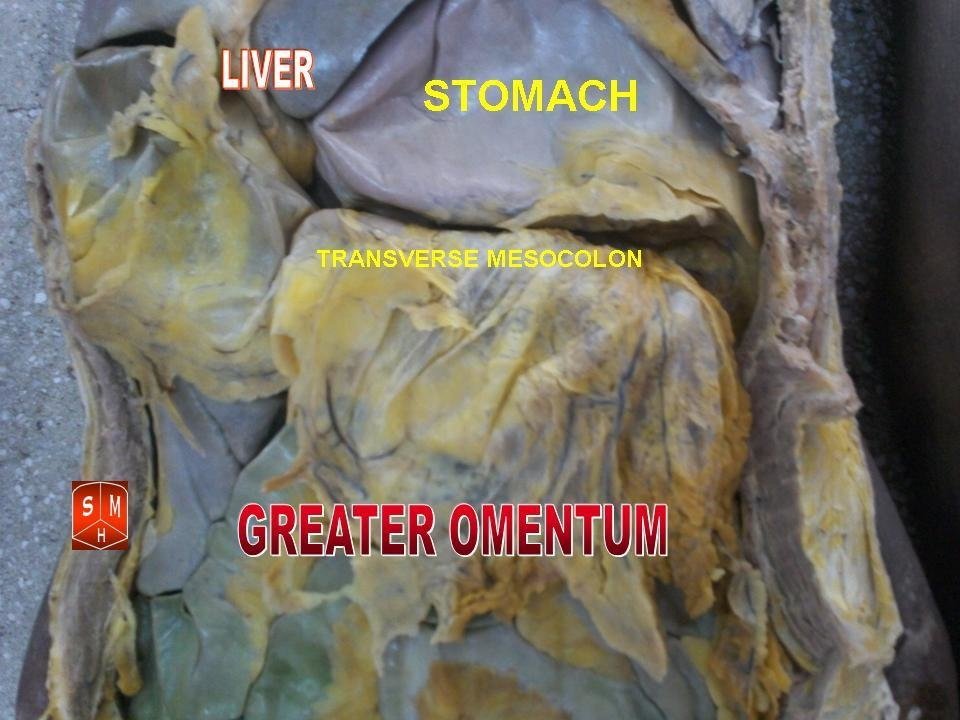 Greater omentum 2
