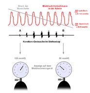 mi a vernyomas egyszerű magas vérnyomás