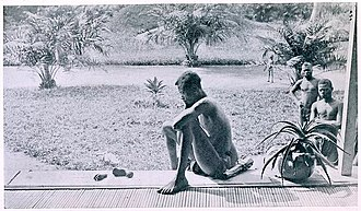 Congo Free State propaganda war - A father stares at a hand and a foot of his five-year-old daughter, severed in punishment by the Force Publique. Photograph by John Hobbis Harris.