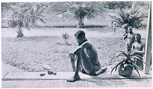 Nsala of Wala in Congo looks at the severed hand and foot of his five-year old daughter, 1904.jpg