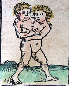 Nuremberg chronicles - Male Siamese twins (CCXVIIr).jpg