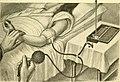 Operative gynecology - (1906) (14596788980).jpg