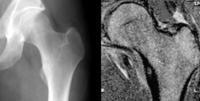 Osteoidosteom Roentgen-MRT.png