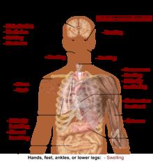 Weight loss weakness fatigue bruising easily