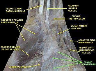 Palmar aponeurosis - Image: Slide 5VVV