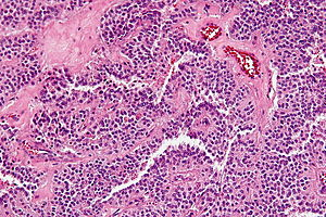 Solid pseudopapillary tumour - high mag.jpg