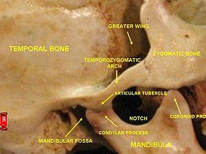 Temporomandibular Joint Wikipedia