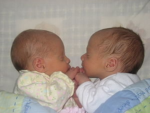 "Multiple birth - Fraternal twins at two weeks old. The technical term for ""fraternal"" is ""polyzygotic""."
