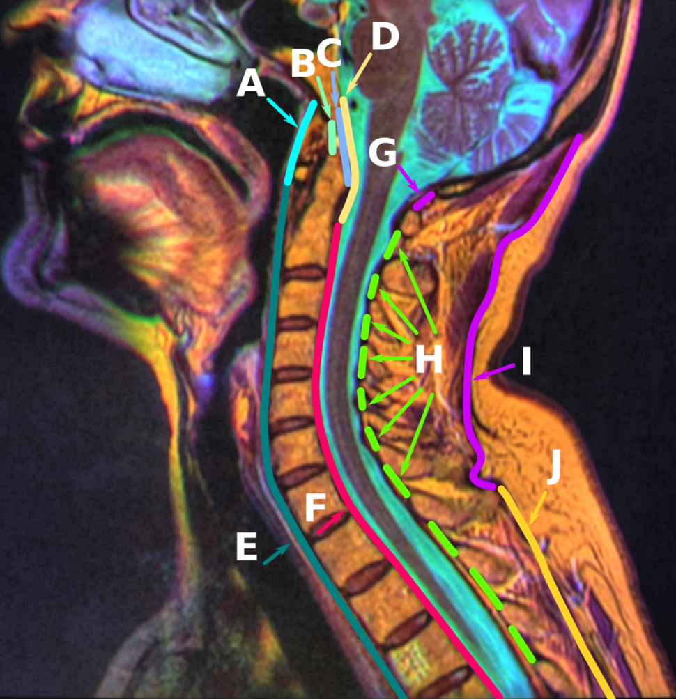Anatomy of the Neck Sagittal Color MRI