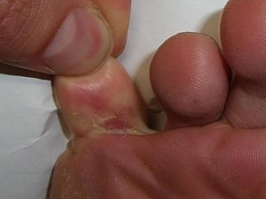 Athletes foot.JPG