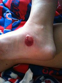 large blood blister on right foot