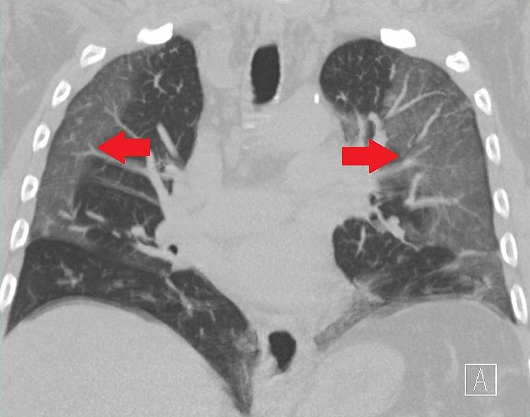 File:COVID-19-Longontsteking.jpg