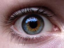 heterocromie și vedere