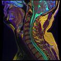 Cervical MRI R T1WFSE G T2WfrFSE STIR B 09.jpg