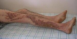 Acantholytic dyskeratotic epidermal nevus - Image: Darier's disease