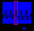 De-Vivt (CardioNetworks ECGpedia).png