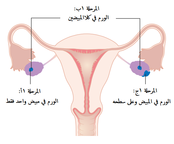 Diagram showing stage 1 ovarian cancer CRUK 193-ar