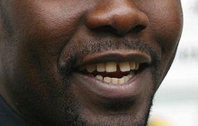 Schneidezähnen zwischen grosse zahnlücke den Baby zahnlücke