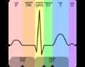 EKG Complex pt.png