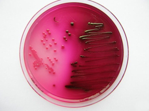 Escherichia coli in Endo's agar