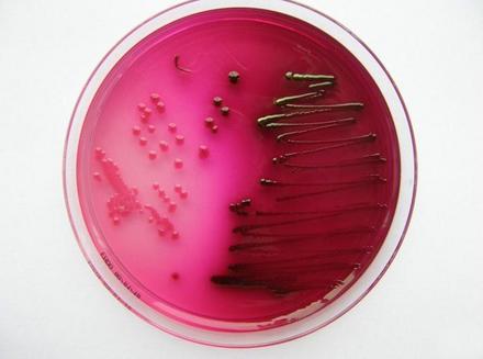 E. coli auf Endo-Agar mit deutlich sichtbarem Metallglanz ...