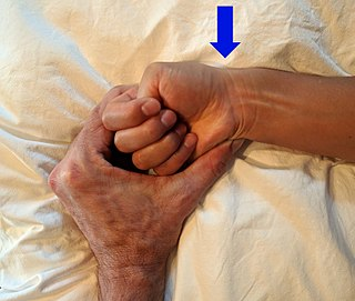 De Quervain syndrome inflammation of two tendons that control movement of the thumb and their tendon sheath