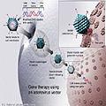 Gene therapyB.jpg