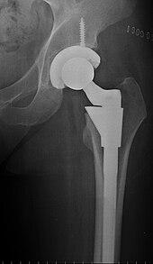 Bone Replacement
