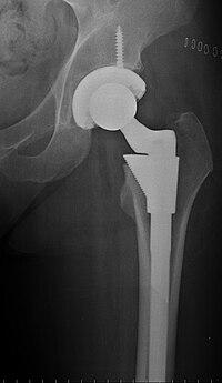koxartróza léčba dureri articulare la nivelul toracelui și umflături