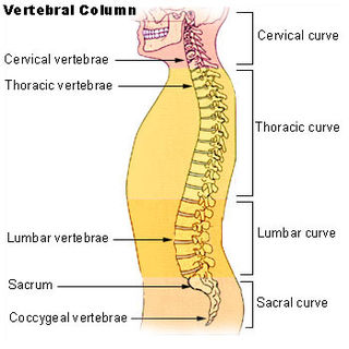 Lordosis or saddle back, curvature of the spine